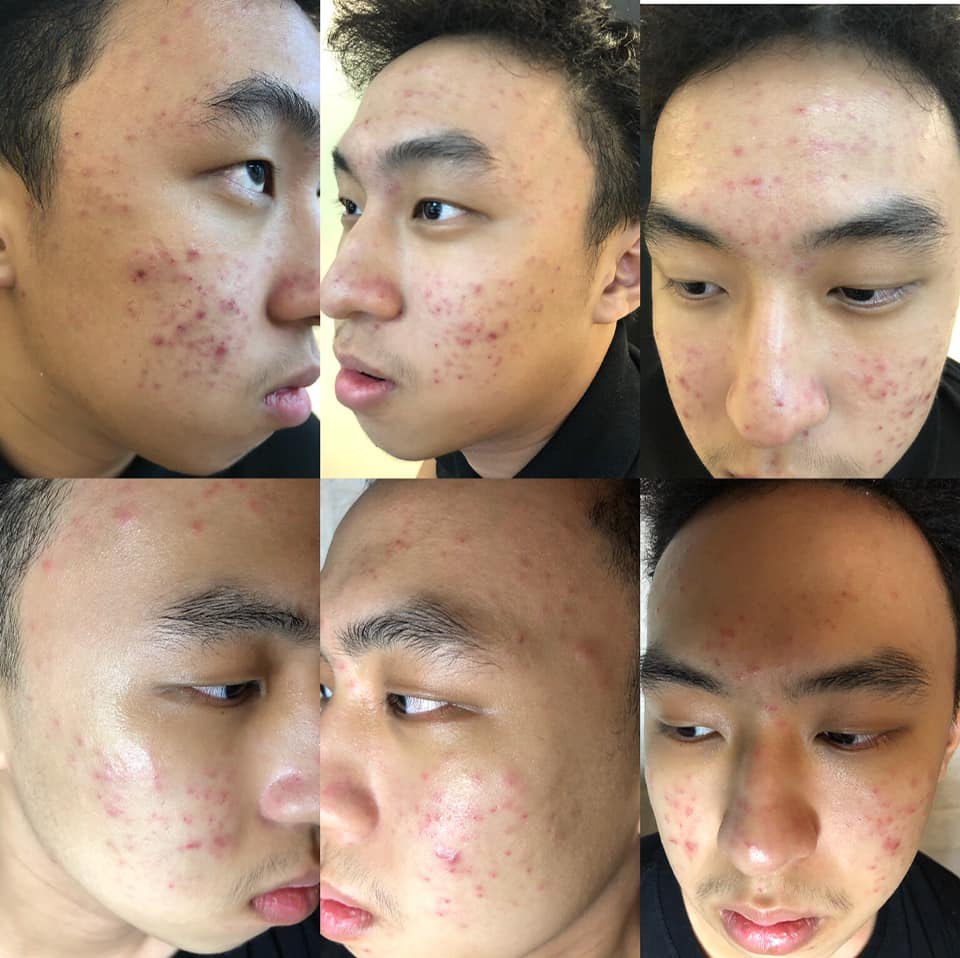 Facial Extraction Before After