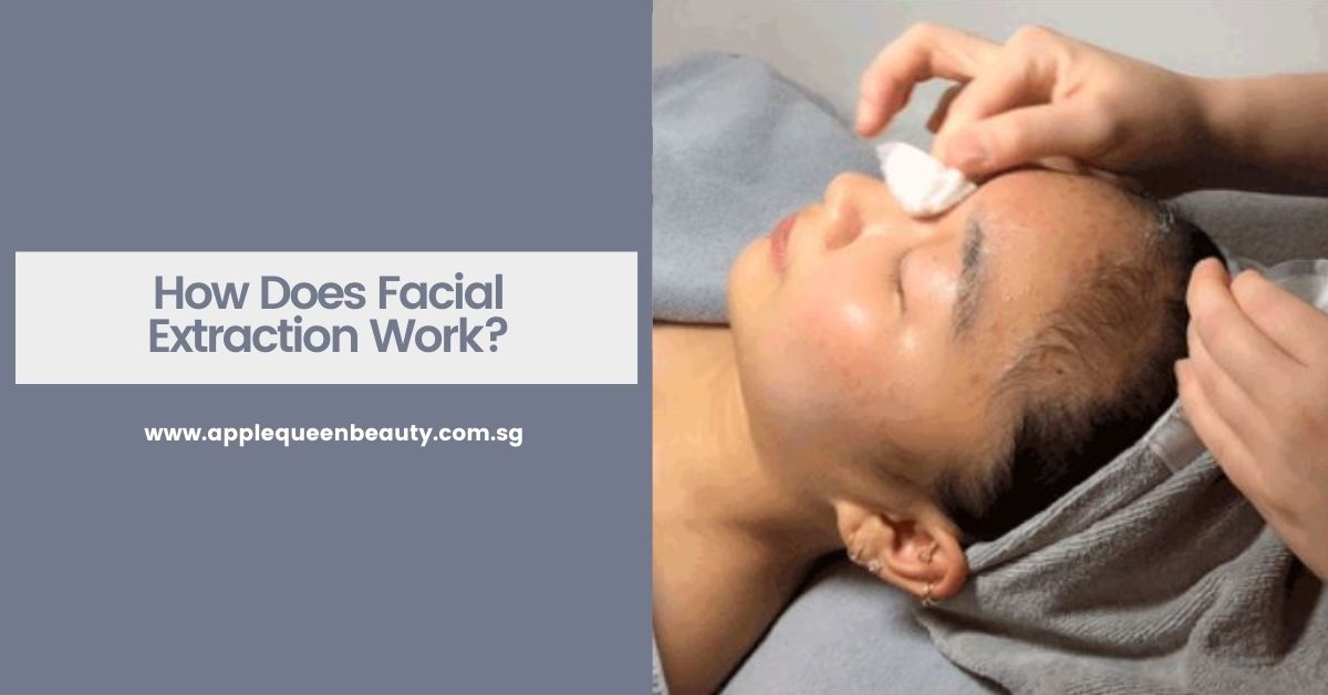 How Does Facial Extraction Work