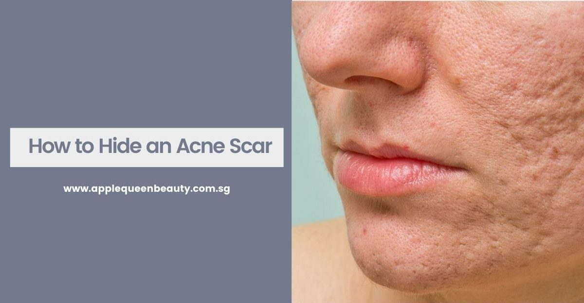 How to Hide an Acne Scar