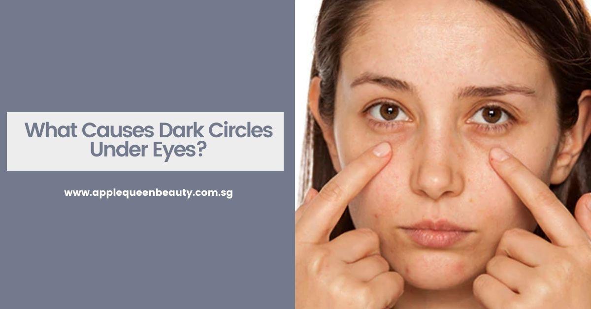 What Causes Dark Circles Under Eyes