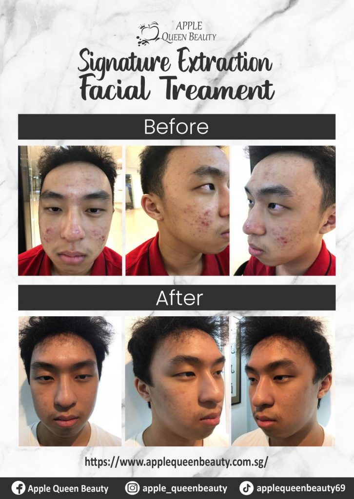 Facial Extraction Before and After