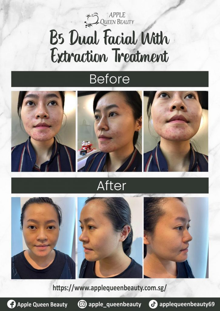 Result after Facial Extraction Treatment