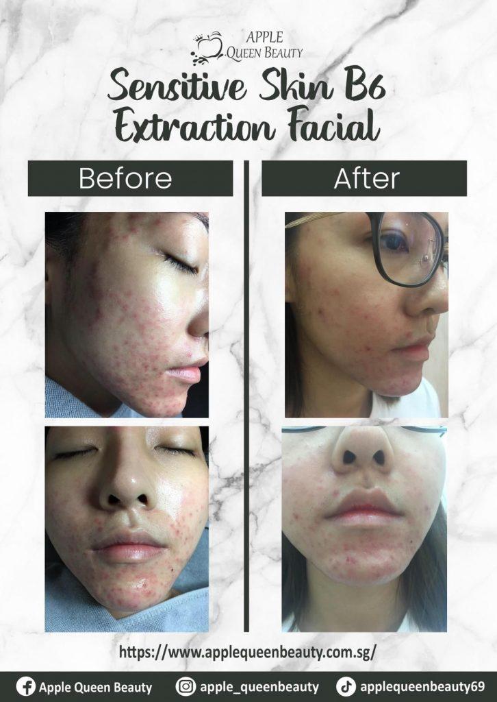 Sensitive Skin B6 Extraction Facial