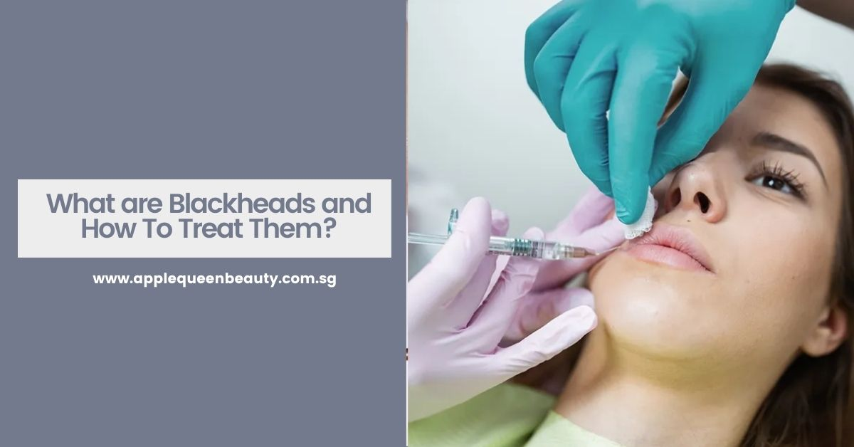 What are Blackheads and How To Treat Them?